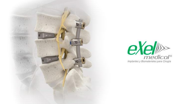 exelmedical-fijacion-verticalt