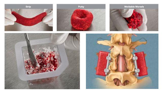 exelmedical-sustitutos-matriz-ceramica