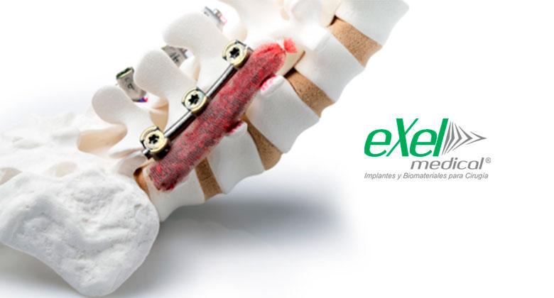 exelmedical-sustitutos-oseos-1