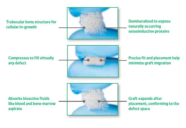 exelmedical-sustitutos-oseos-allograf