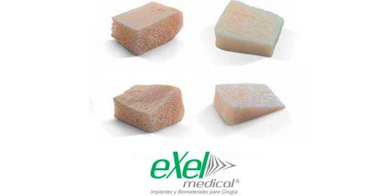 exelmedical-aloinjertos-especiales
